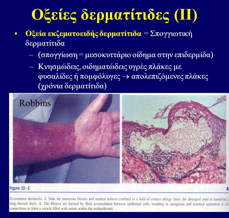 Οξείες δερματίτιδες (ΙΙ)