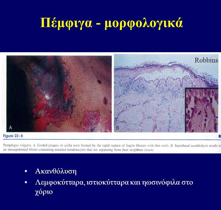 Πέμφιγα - μορφολογικά Ακανθόλυση