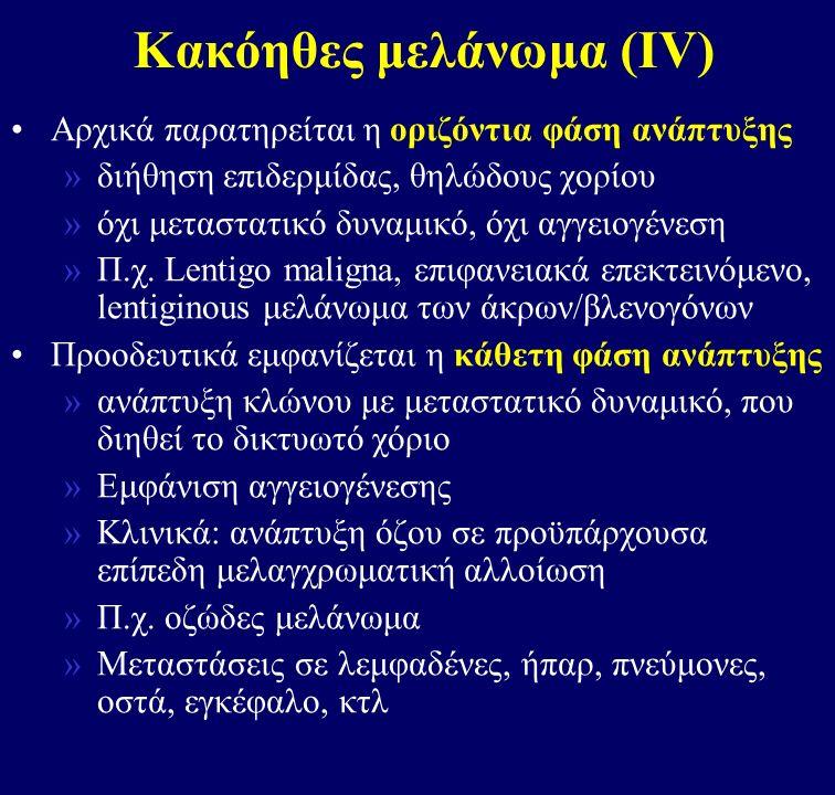 Κακόηθες μελάνωμα (ΙV)