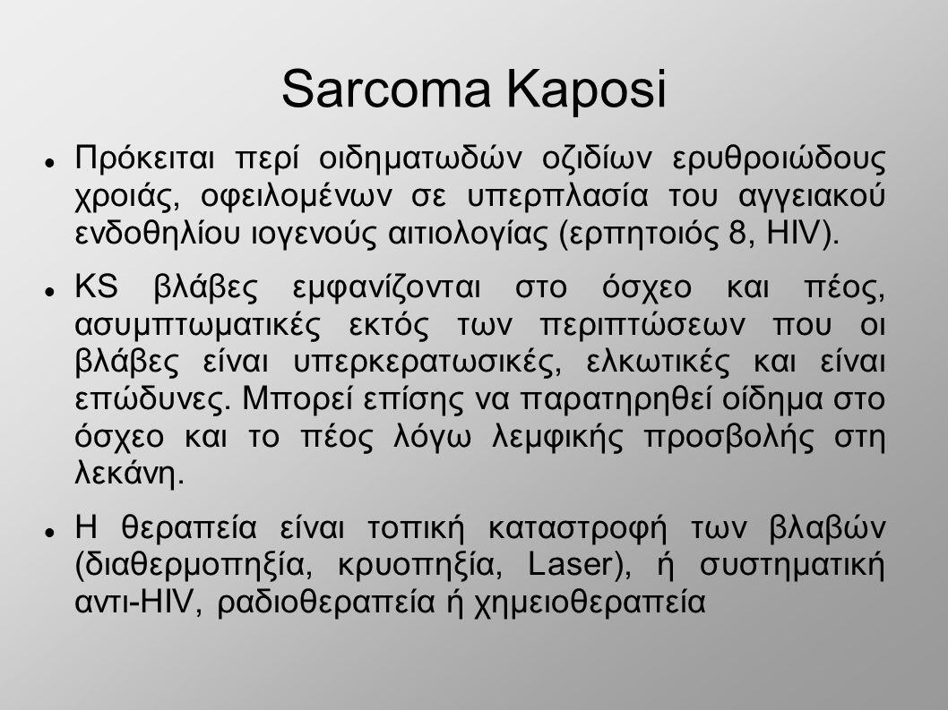 Sarcoma Kaposi