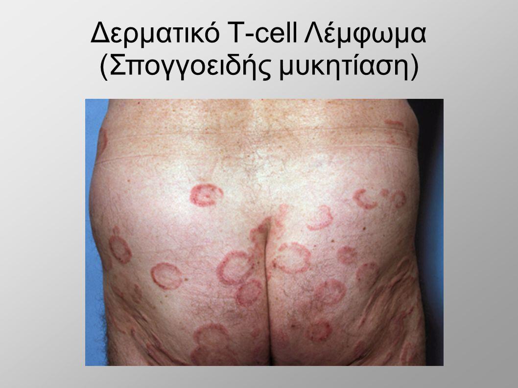 Δερματικό Τ-cell Λέμφωμα (Σπογγοειδής μυκητίαση)