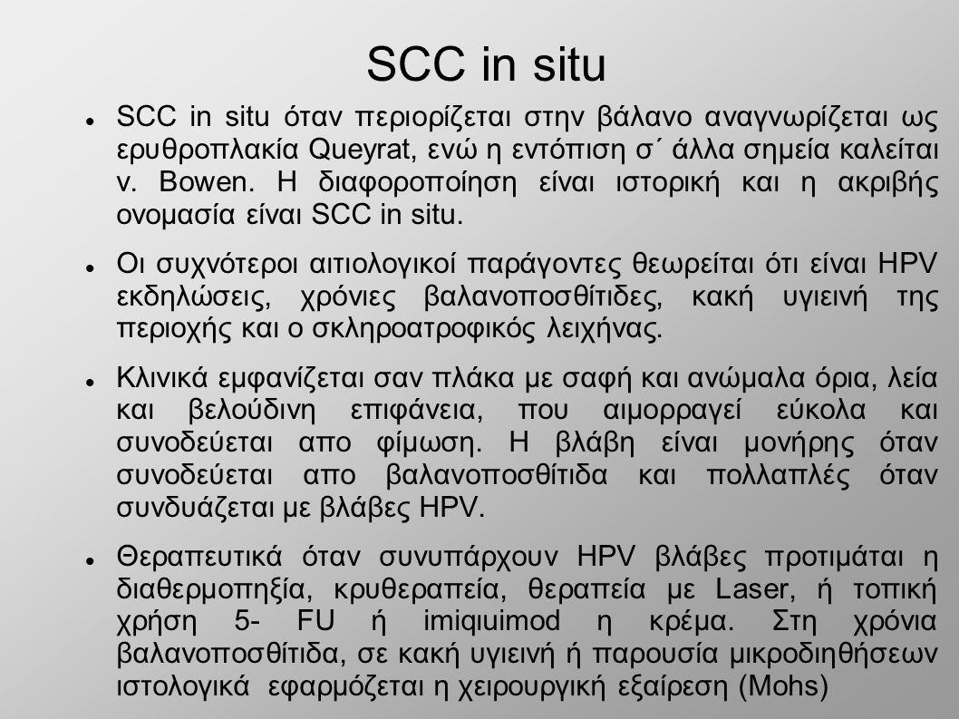 SCC in situ