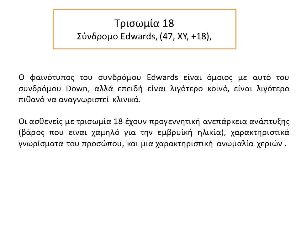 Τρισωμία 18 Σύνδρομο Edwards, (47, XY, +18),