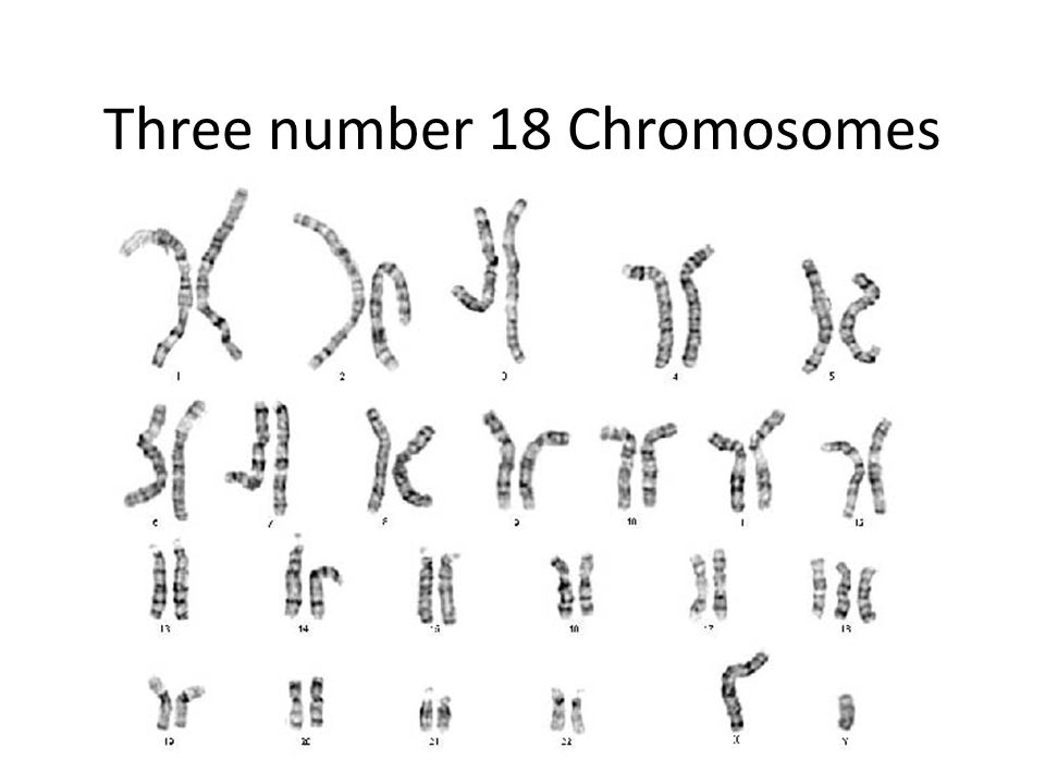 Three number 18 Chromosomes