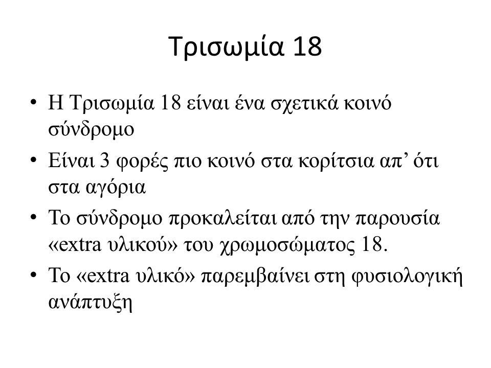 Τρισωμία 18 Η Τρισωμία 18 είναι ένα σχετικά κοινό σύνδρομο