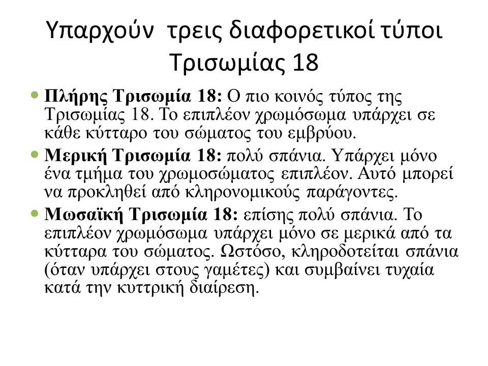 Υπαρχούν τρεις διαφορετικοί τύποι Τρισωμίας 18