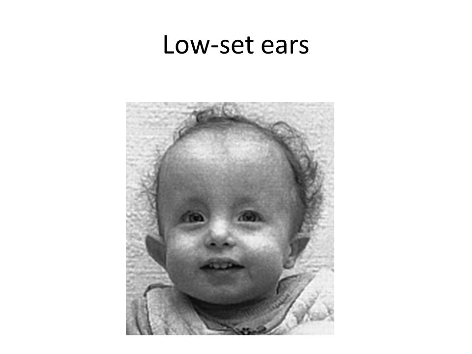 Low-set ears