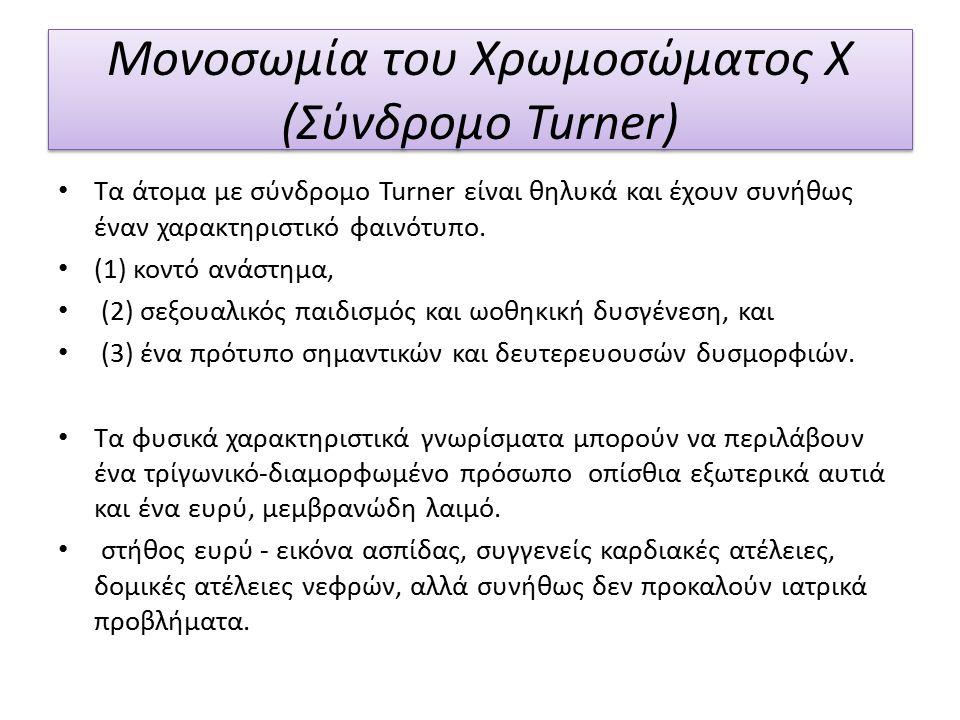 Μονοσωμία του Χρωμοσώματος Χ (Σύνδρομο Turner)