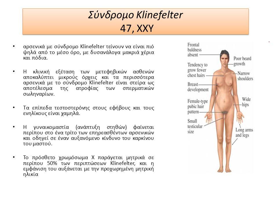 Σύνδρομο Klinefelter 47, XXY