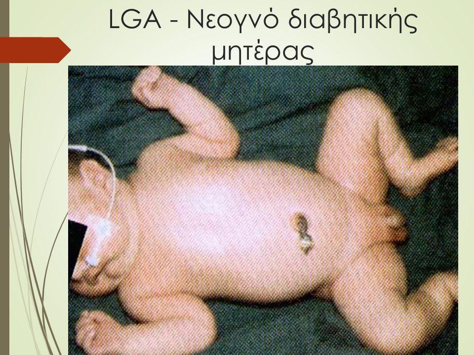 LGA - Νεογνό διαβητικής μητέρας