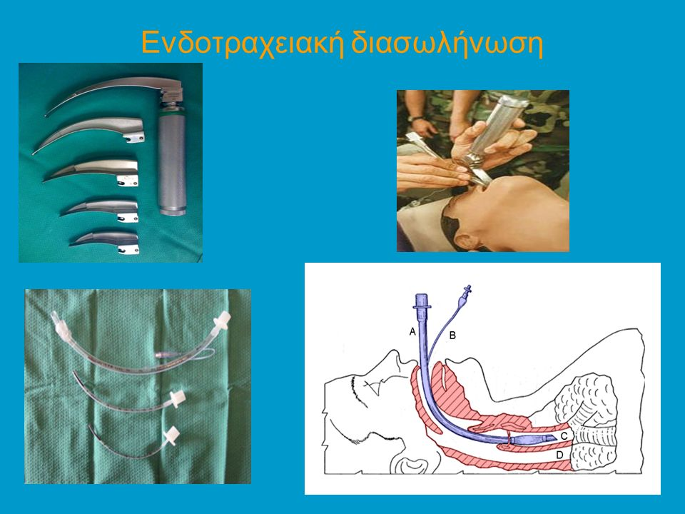Ενδοτραχειακή διασωλήνωση