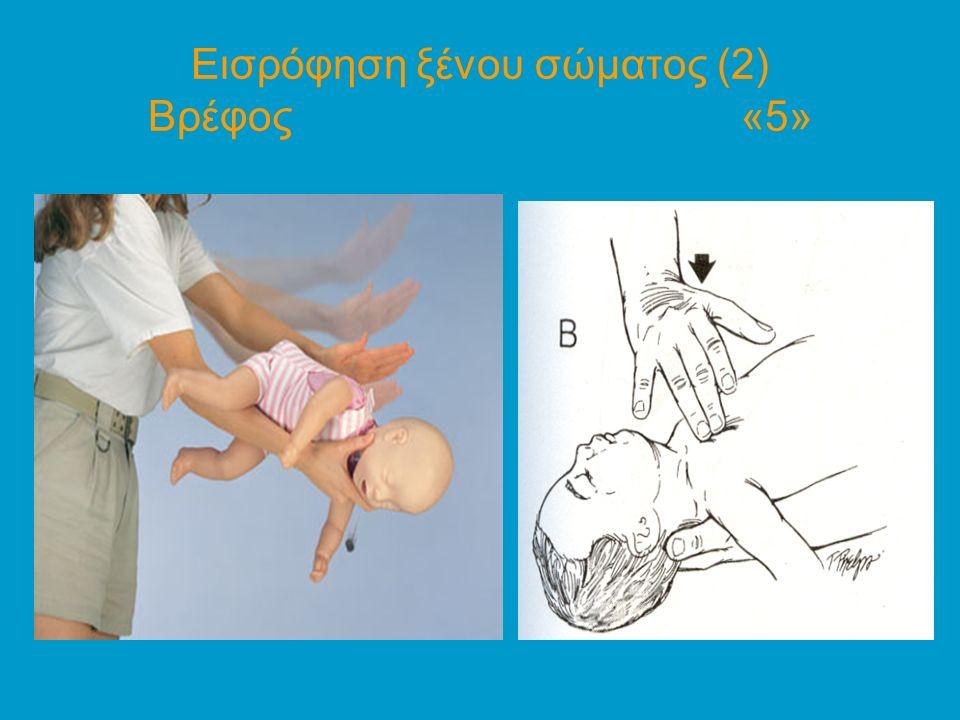 Εισρόφηση ξένου σώματος (2) Βρέφος «5»