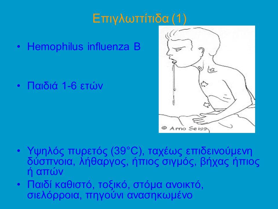 Eπιγλωττίτιδα (1) Ηemophilus influenza B Παιδιά 1-6 ετών