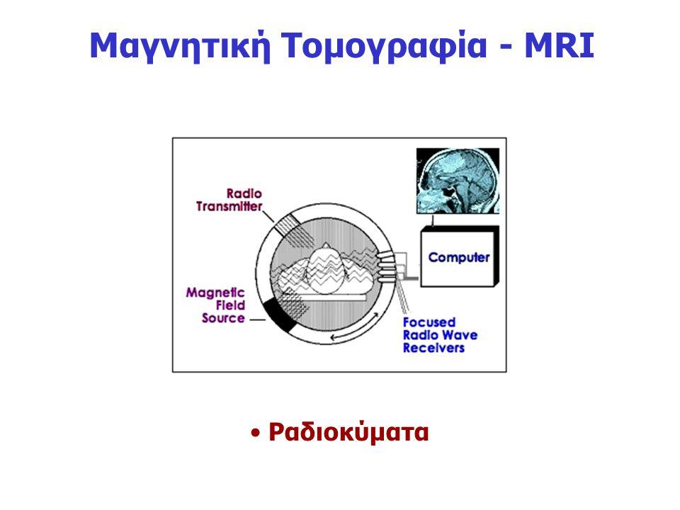 Μαγνητική Τομογραφία - MRI