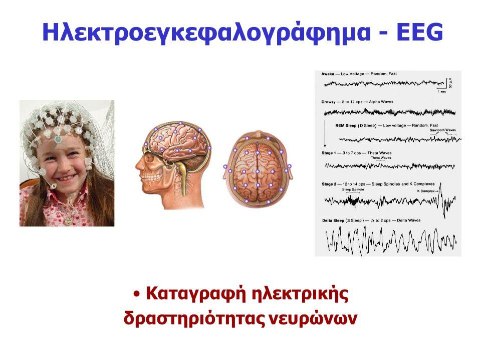 Ηλεκτροεγκεφαλογράφημα - EEG