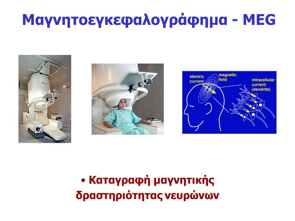 Μαγνητοεγκεφαλογράφημα - ΜEG