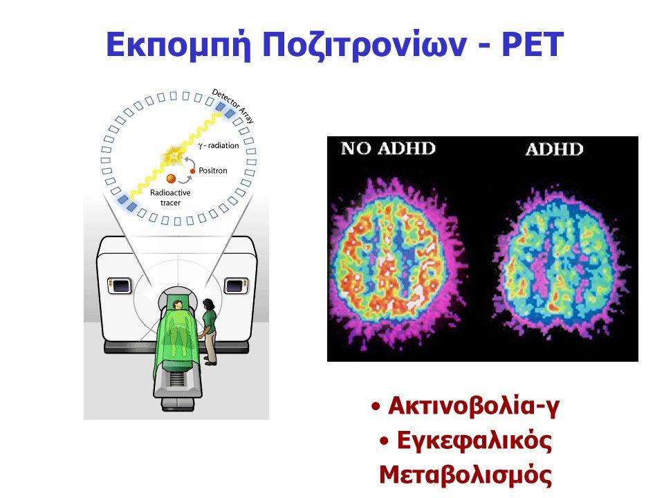 Εκπομπή Ποζιτρονίων - PET Εγκεφαλικός Μεταβολισμός