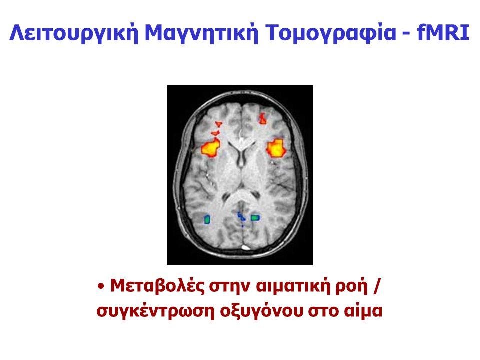 Λειτουργική Μαγνητική Τομογραφία - fMRI