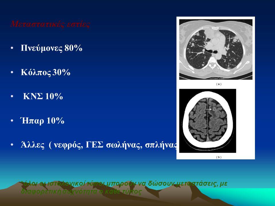 Μεταστατικές εστίες Πνεύμονες 80% Κόλπος 30% ΚΝΣ 10% Ήπαρ 10%