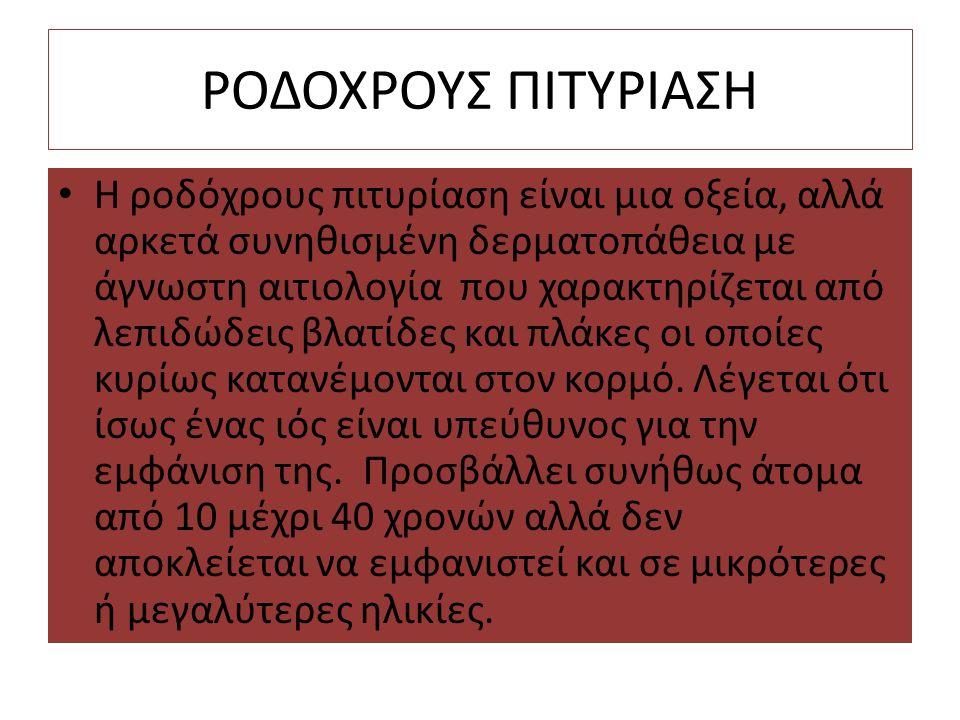 ΡΟΔΟΧΡΟΥΣ ΠΙΤΥΡΙΑΣΗ