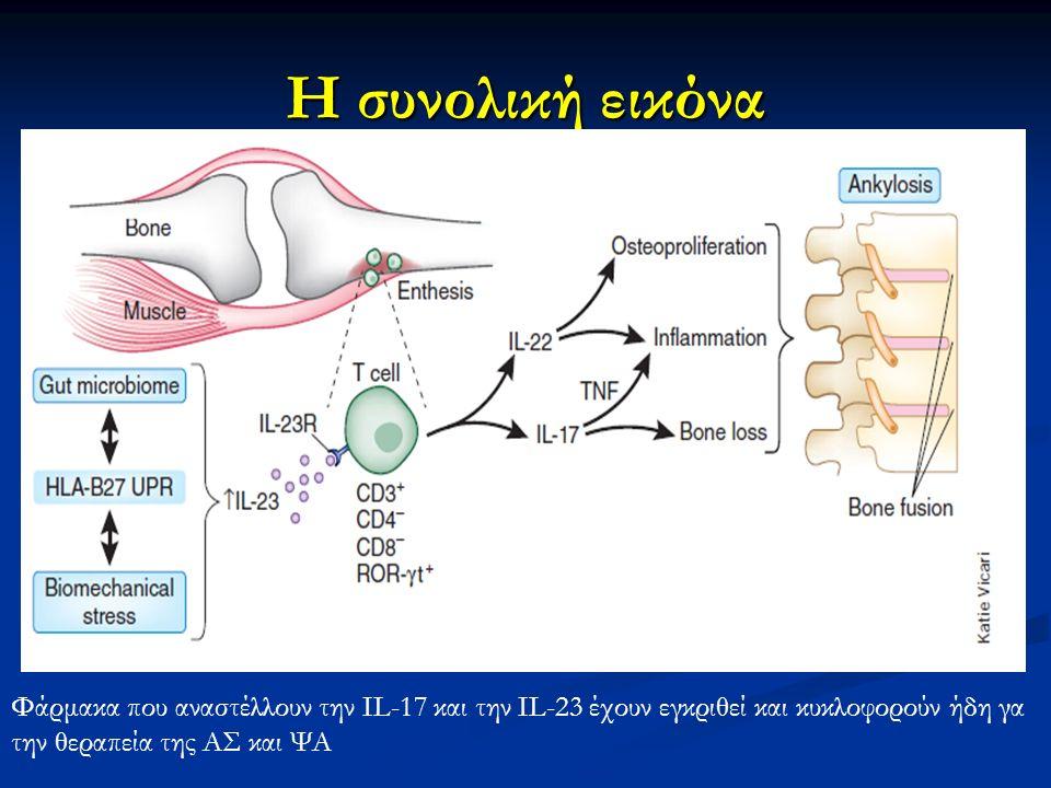 Η συνολική εικόνα Φάρμακα που αναστέλλουν την IL-17 και την IL-23 έχουν εγκριθεί και κυκλοφορούν ήδη γα την θεραπεία της ΑΣ και ΨΑ.