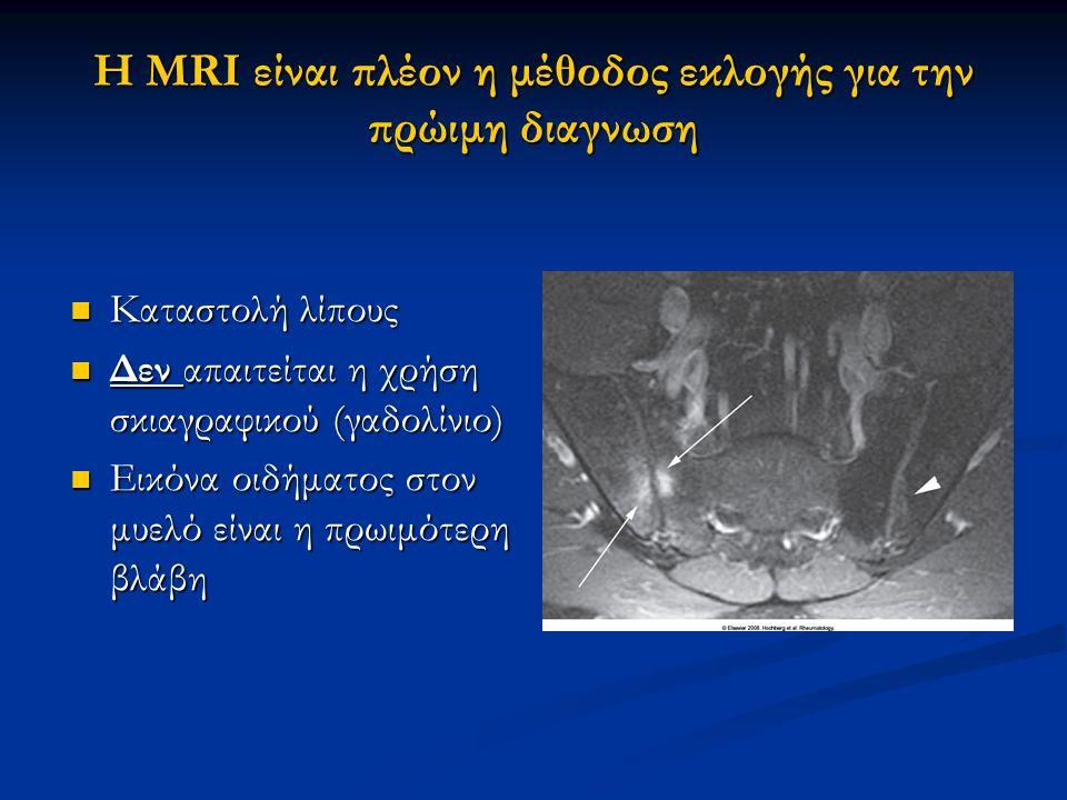 Η MRI είναι πλέον η μέθοδος εκλογής για την πρώιμη διαγνωση