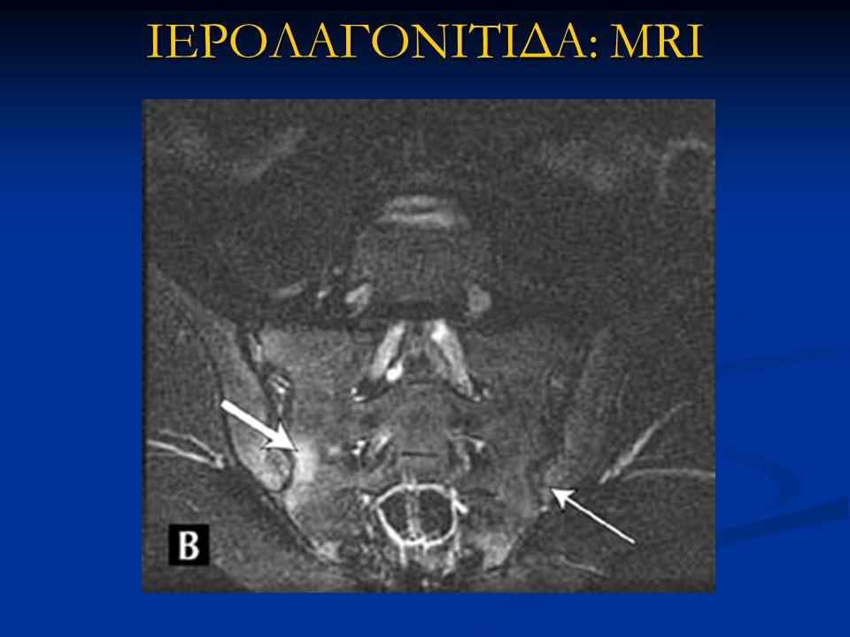 ΙΕΡΟΛΑΓΟΝΙΤΙΔΑ: MRI