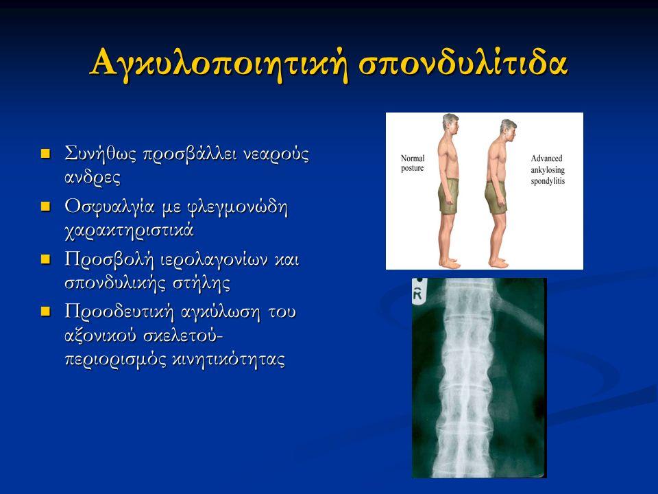 Αγκυλοποιητική σπονδυλίτιδα
