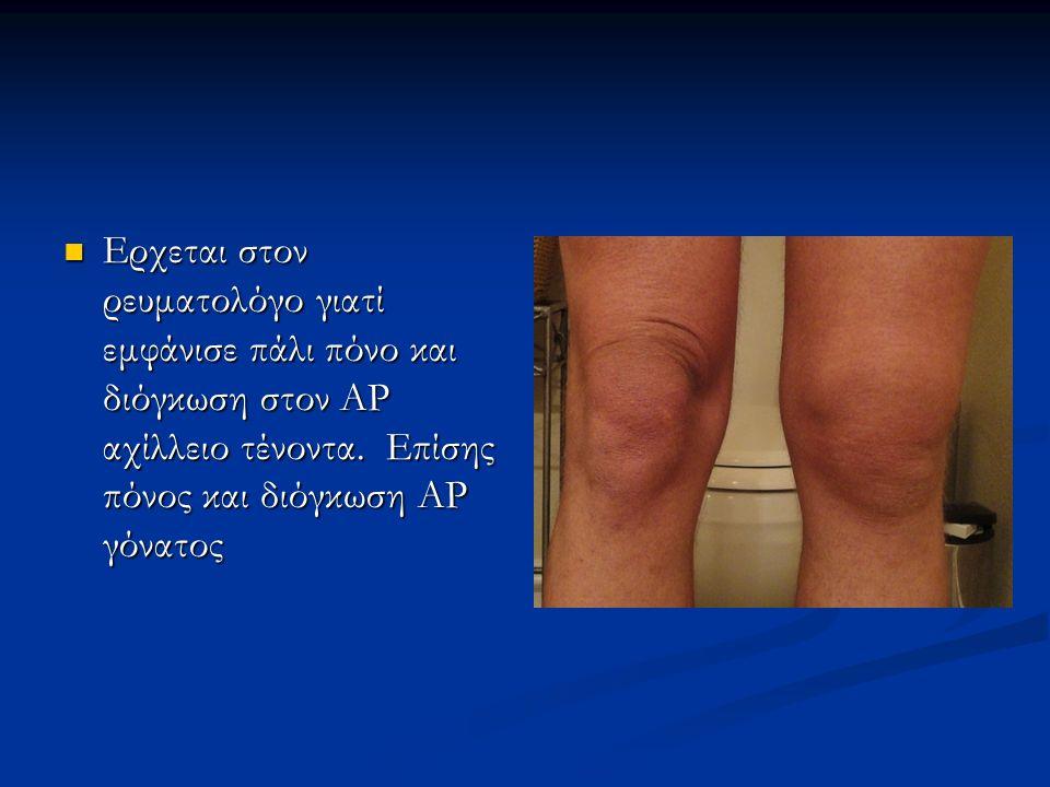 Ερχεται στον ρευματολόγο γιατί εμφάνισε πάλι πόνο και διόγκωση στον ΑΡ αχίλλειο τένοντα.