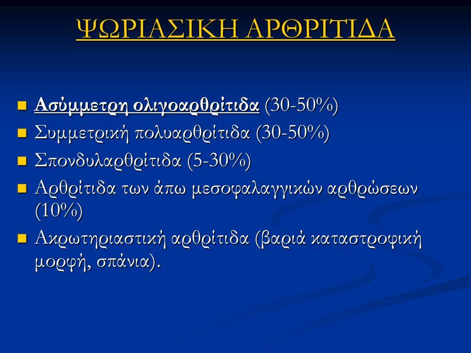 ΨΩΡΙΑΣΙΚΗ ΑΡΘΡΙΤΙΔΑ Ασύμμετρη ολιγοαρθρίτιδα (30-50%)