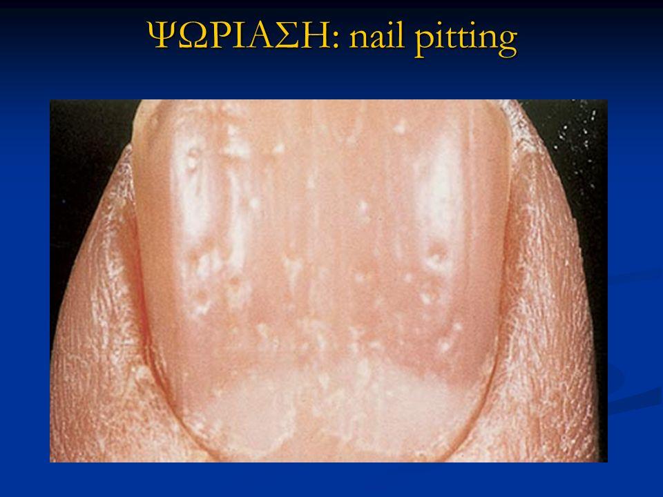 ΨΩΡΙΑΣΗ: nail pitting