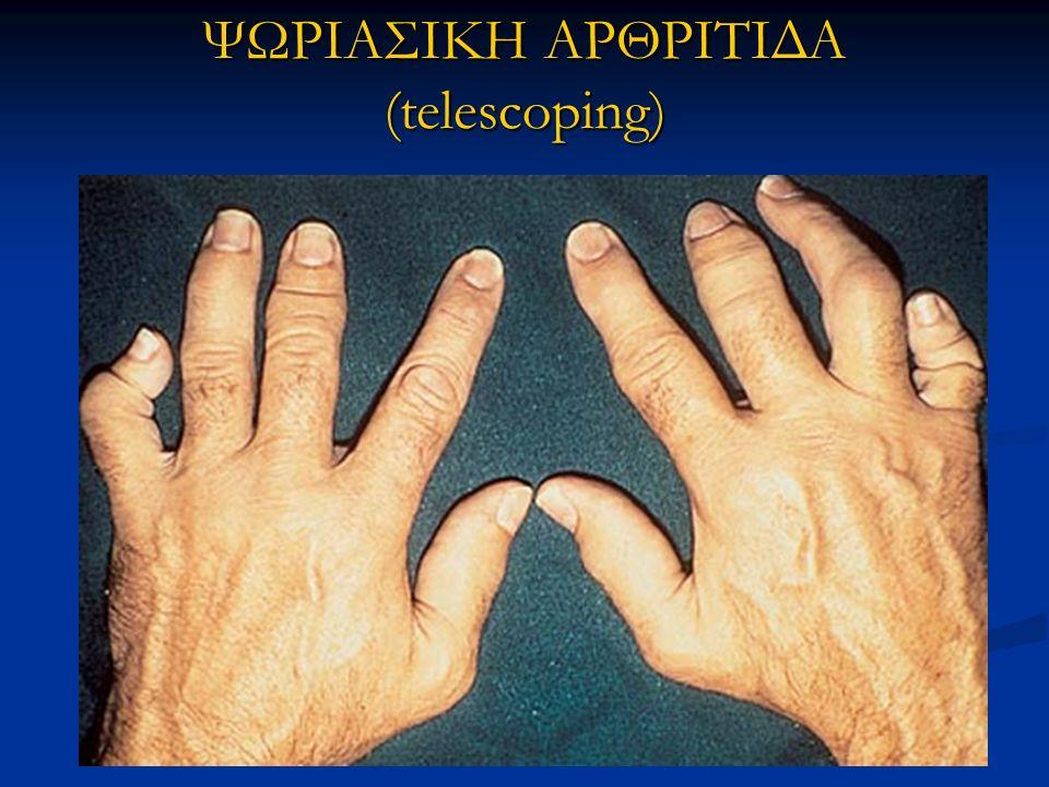 ΨΩΡΙΑΣΙΚΗ ΑΡΘΡΙΤΙΔΑ (telescoping)