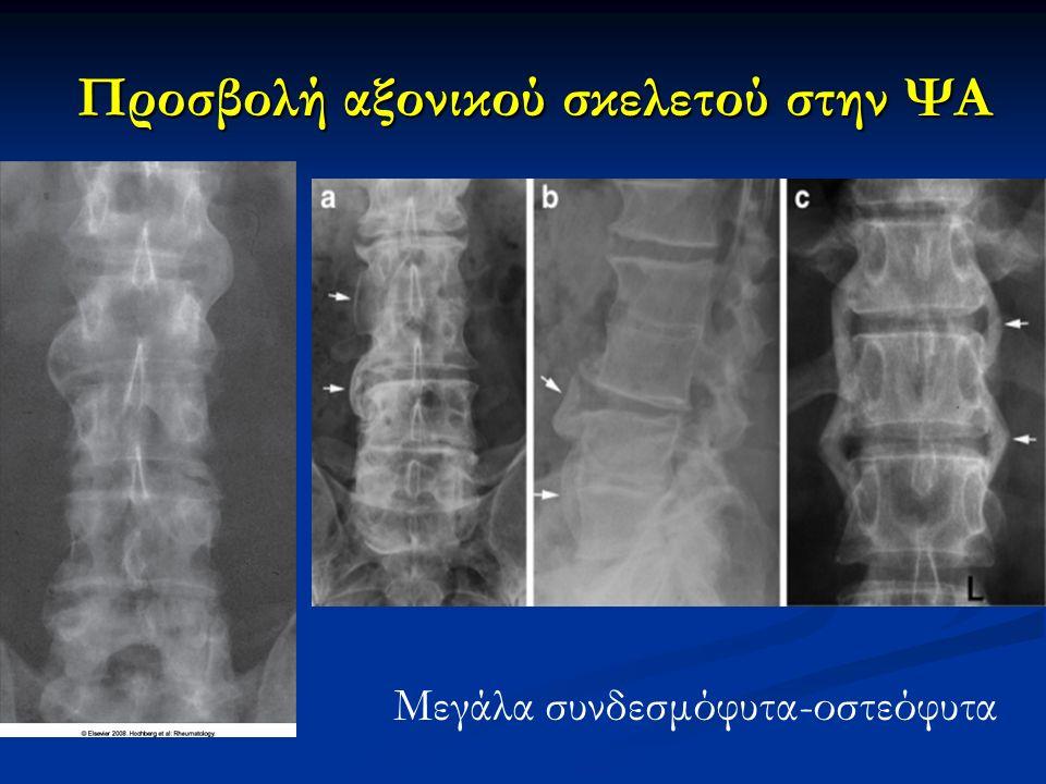 Προσβολή αξονικού σκελετού στην ΨΑ