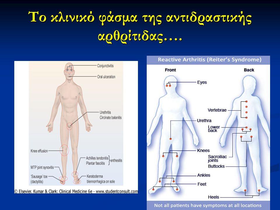 Το κλινικό φάσμα της αντιδραστικής αρθρίτιδας….