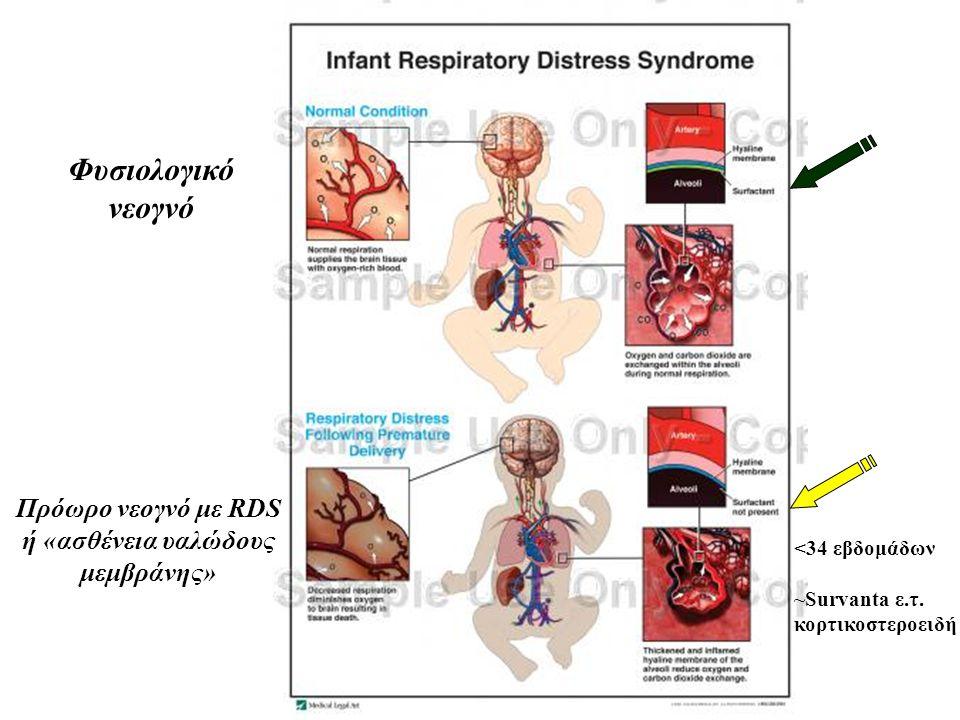 Πρόωρο νεογνό με RDS ή «ασθένεια υαλώδους μεμβράνης»
