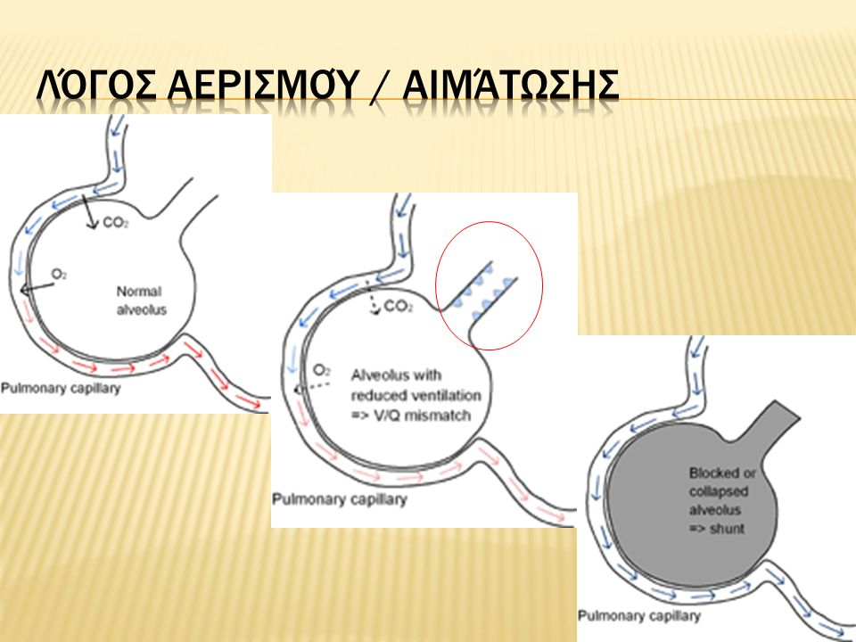 Λόγος αερισμού / αιμάτωσης (V/Q)