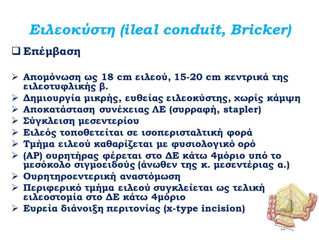 Ειλεοκύστη (ileal conduit, Bricker)
