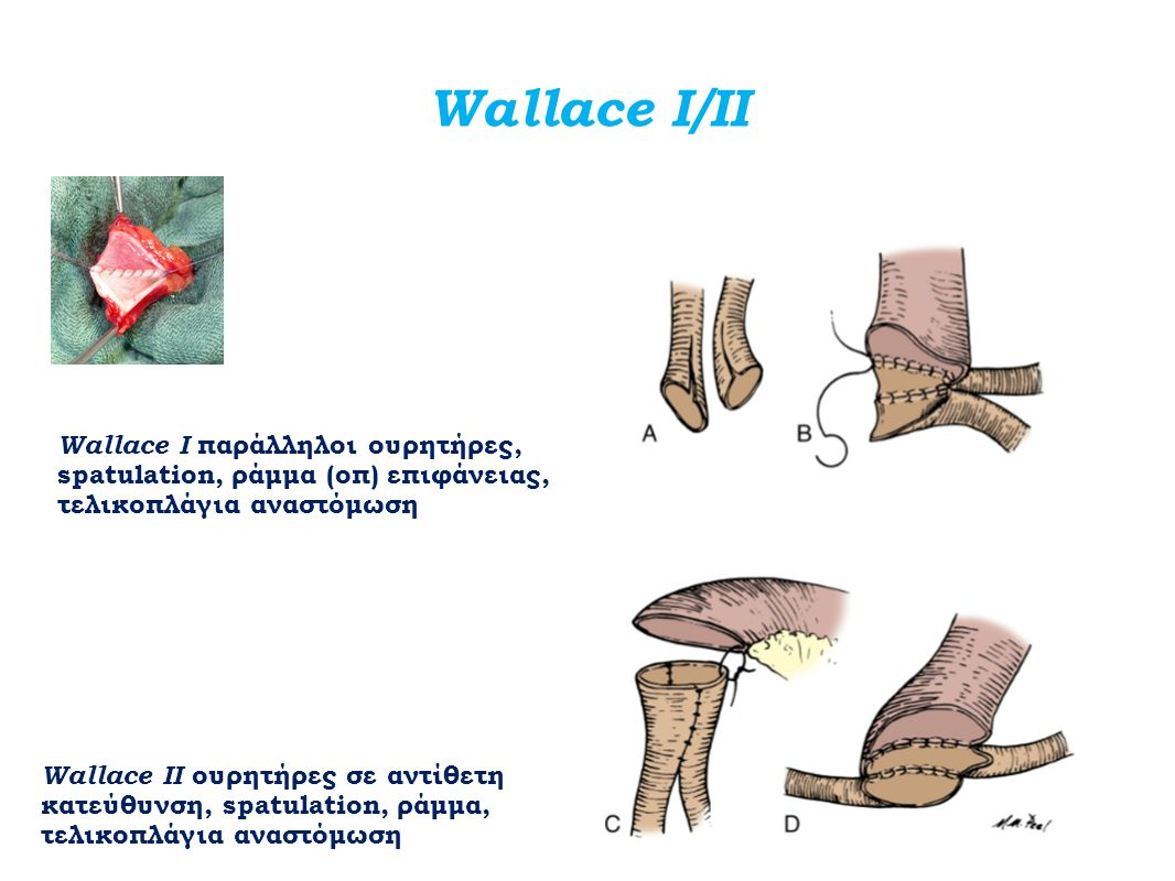 Wallace Ι/ΙΙ Wallace Ι παράλληλοι ουρητήρες,