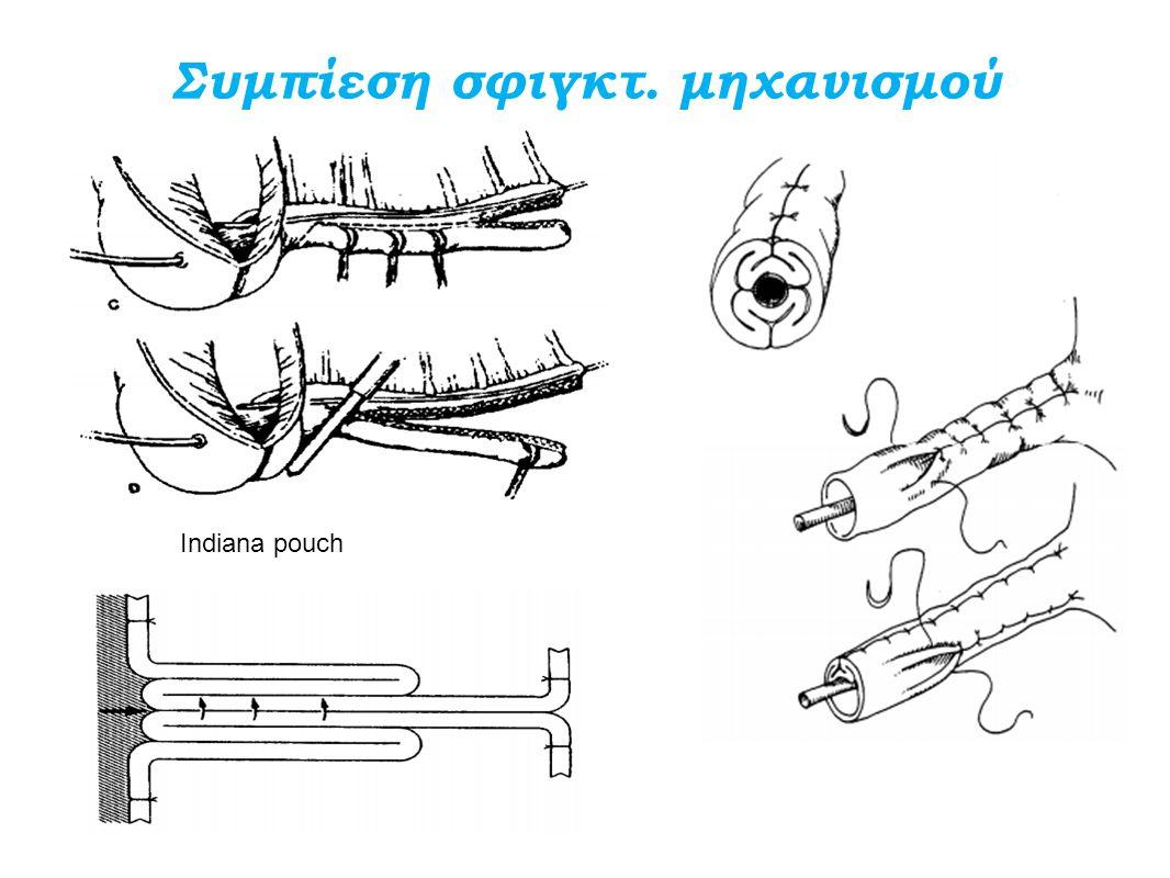 Συμπίεση σφιγκτ. μηχανισμού