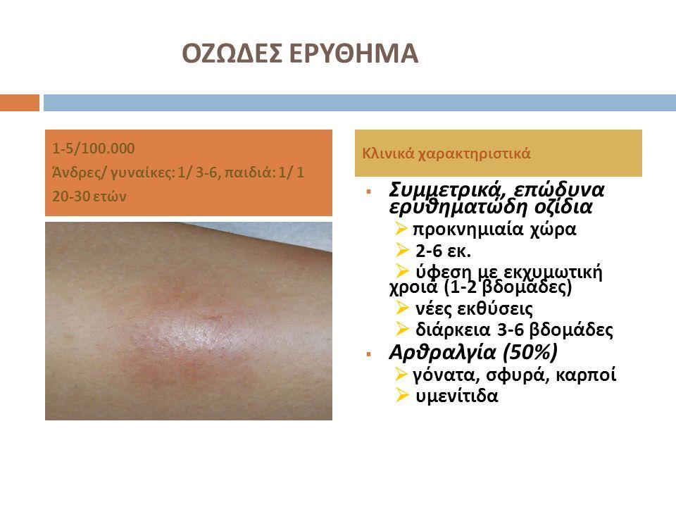ΟΖΩΔΕΣ ΕΡΥΘΗΜΑ Συμμετρικά, επώδυνα ερυθηματώδη οζίδια Αρθραλγία (50%)
