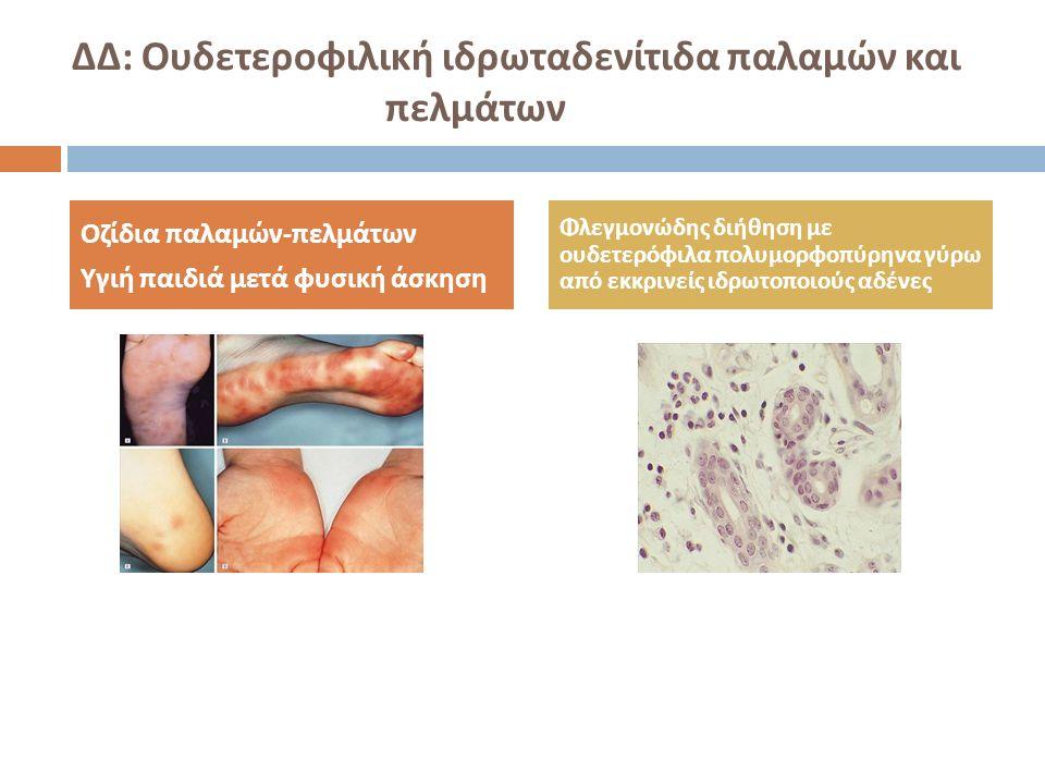 ΔΔ: Ουδετεροφιλική ιδρωταδενίτιδα παλαμών και πελμάτων