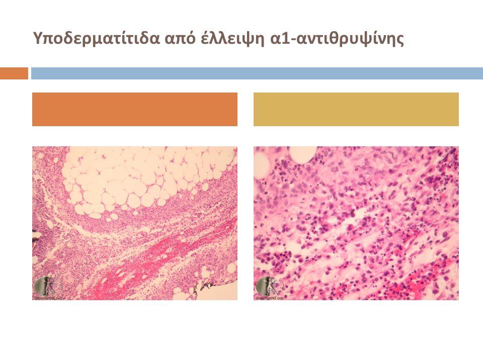 Υποδερματίτιδα από έλλειψη α1-αντιθρυψίνης