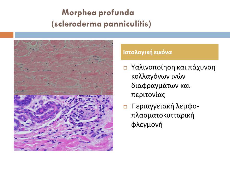 Morphea profunda (scleroderma panniculitis)