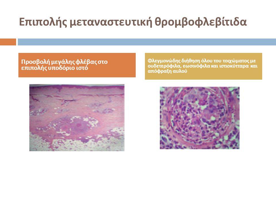 Επιπολής μεταναστευτική θρομβοφλεβίτιδα