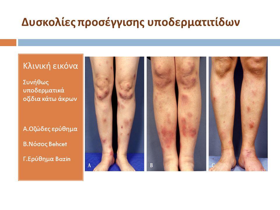 Δυσκολίες προσέγγισης υποδερματιτίδων