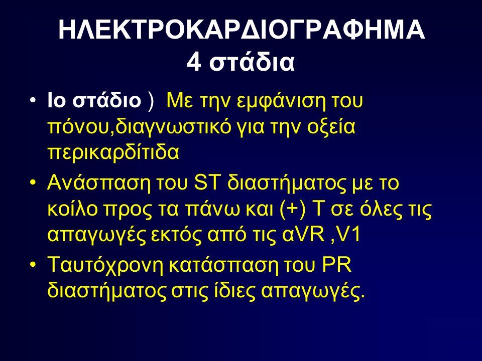 ΗΛΕΚΤΡΟΚΑΡΔΙΟΓΡΑΦΗΜΑ 4 στάδια