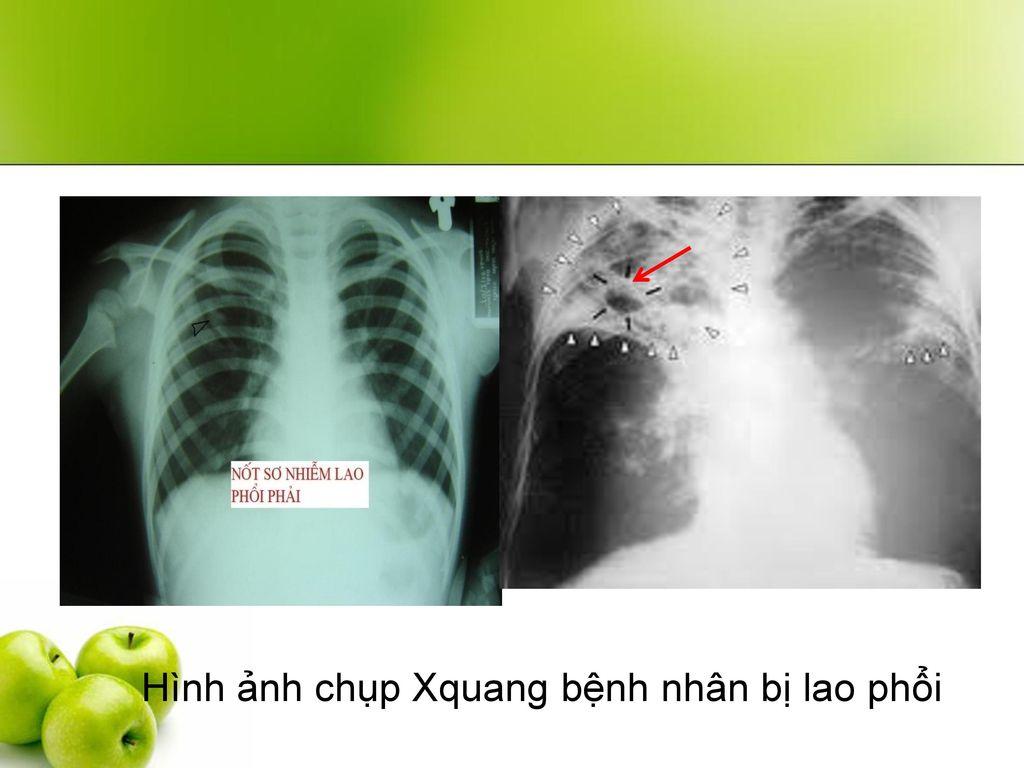 Hình ảnh chụp Xquang bệnh nhân bị lao phổi