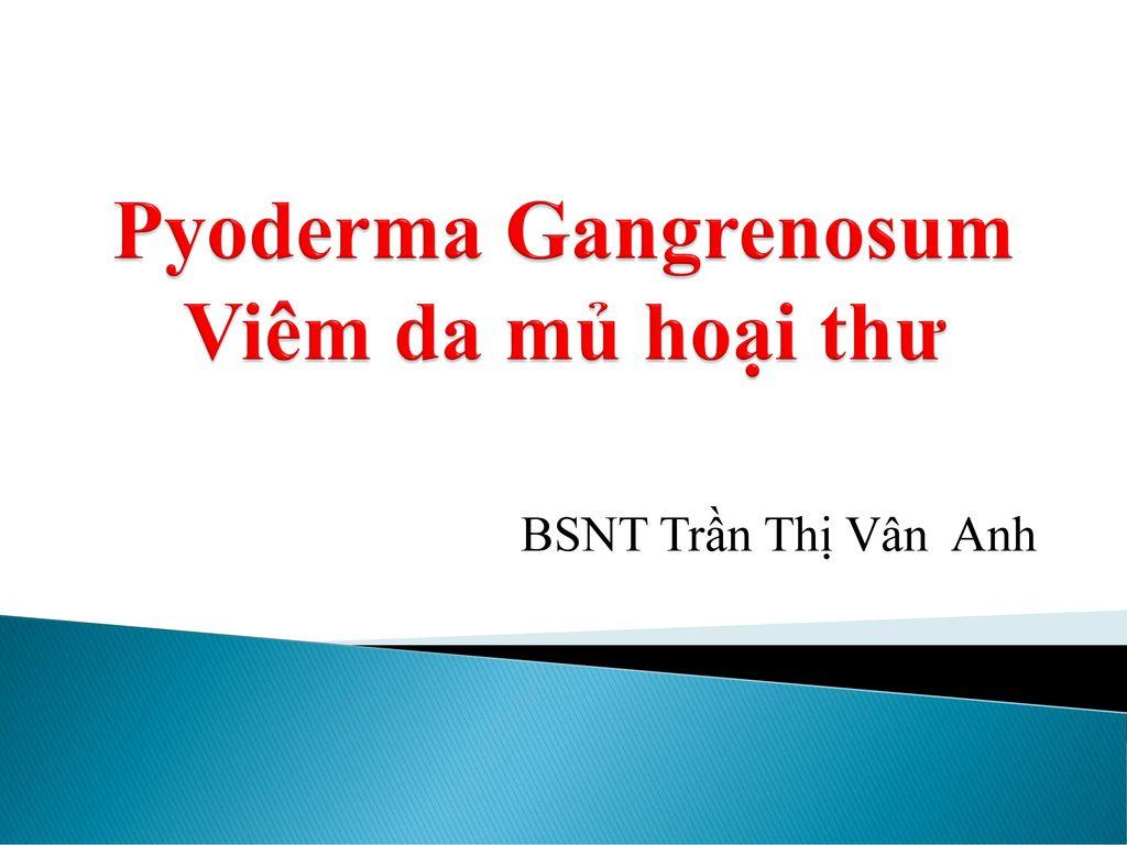 Pyoderma Gangrenosum Viêm da mủ hoại thư