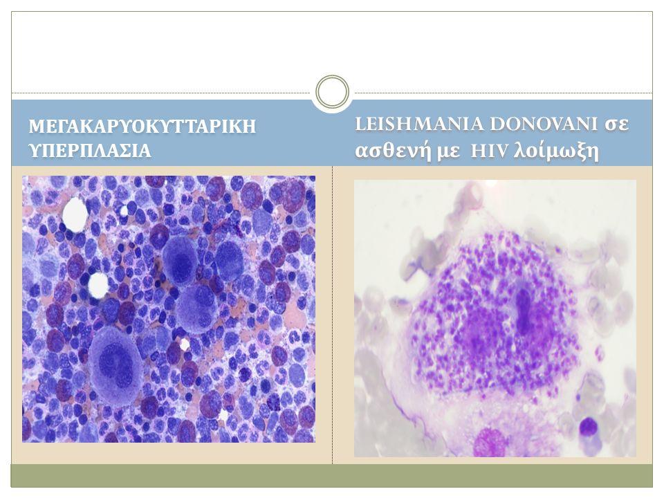 LEISHMANIA DONOVANI σε ασθενή με HIV λοίμωξη