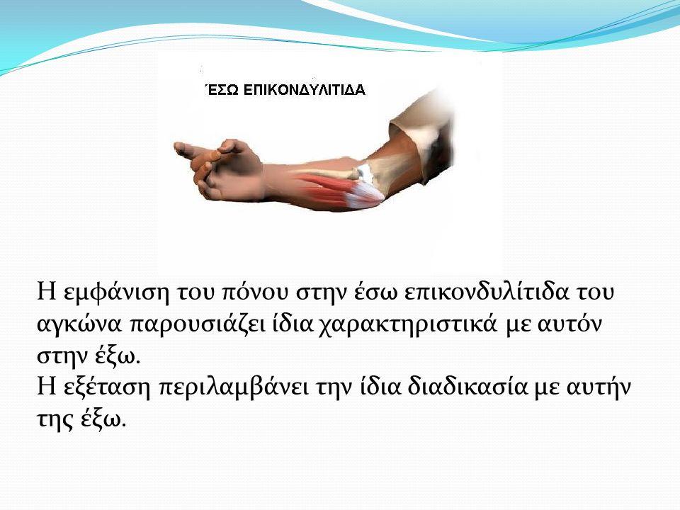 Η εμφάνιση του πόνου στην έσω επικονδυλίτιδα του αγκώνα παρουσιάζει ίδια χαρακτηριστικά με αυτόν στην έξω.